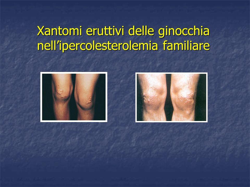 Xantomi eruttivi delle ginocchia nell'ipercolesterolemia familiare