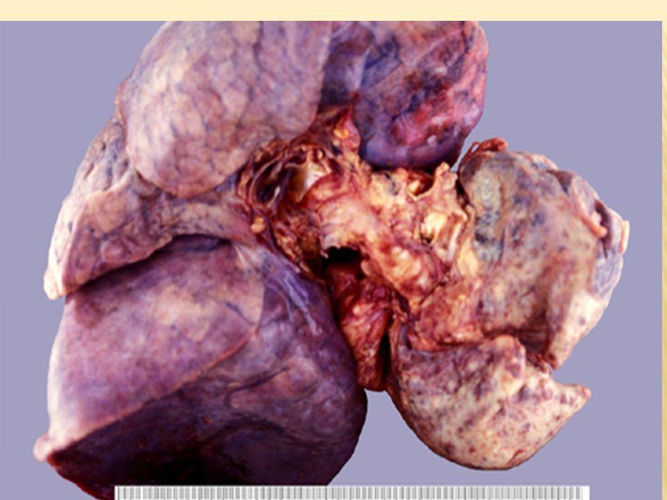 Carcinoma al polmone
