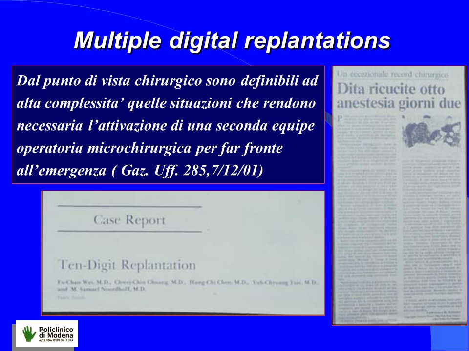 Multiple digital replantations