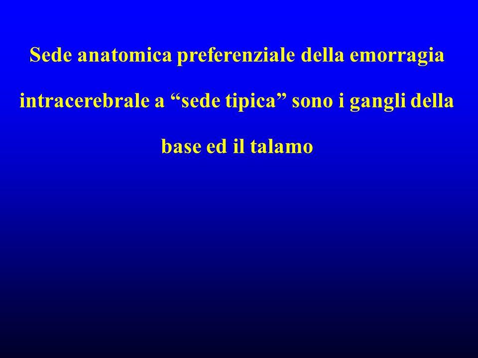 Sede anatomica preferenziale della emorragia intracerebrale a sede tipica sono i gangli della base ed il talamo
