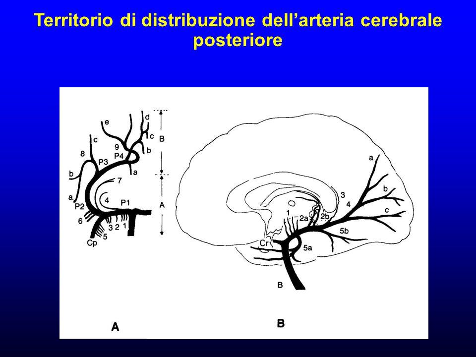 Territorio di distribuzione dell'arteria cerebrale posteriore