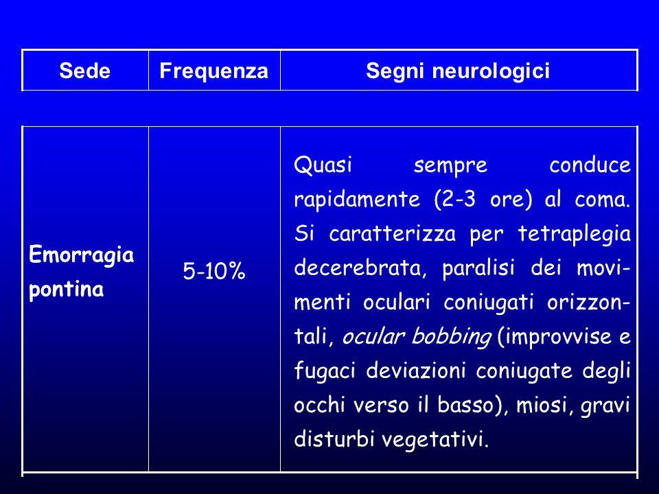Sede Frequenza. Segni neurologici.