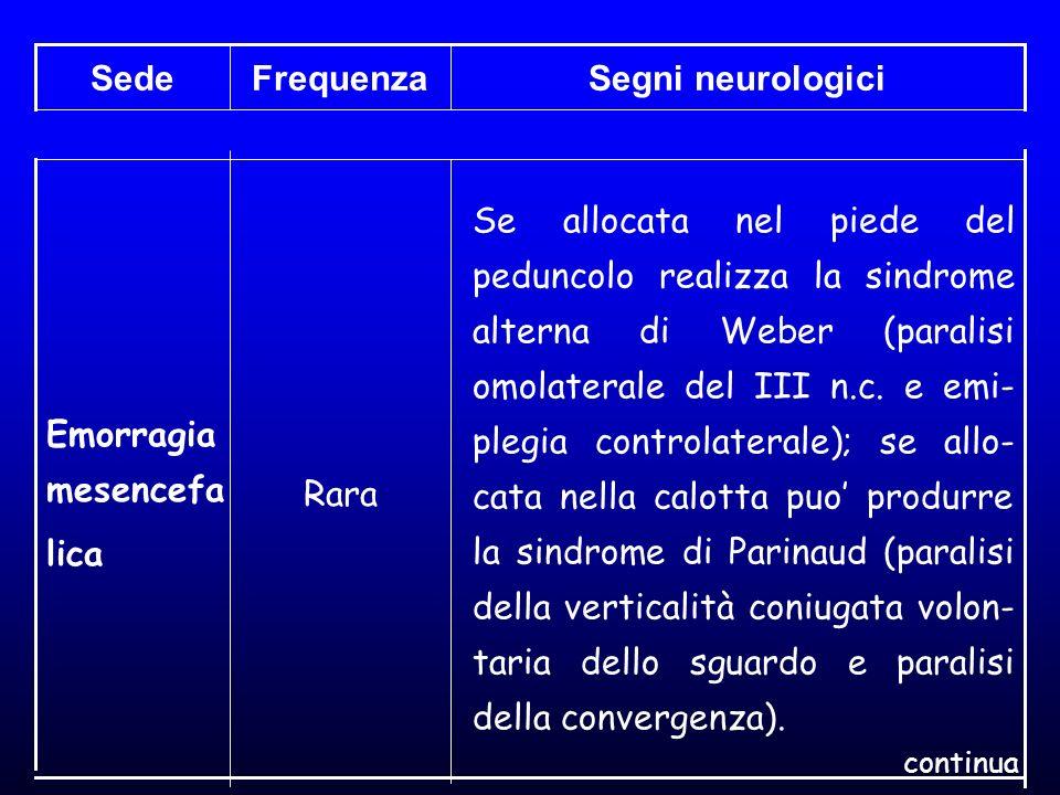 Segni neurologici Frequenza Sede