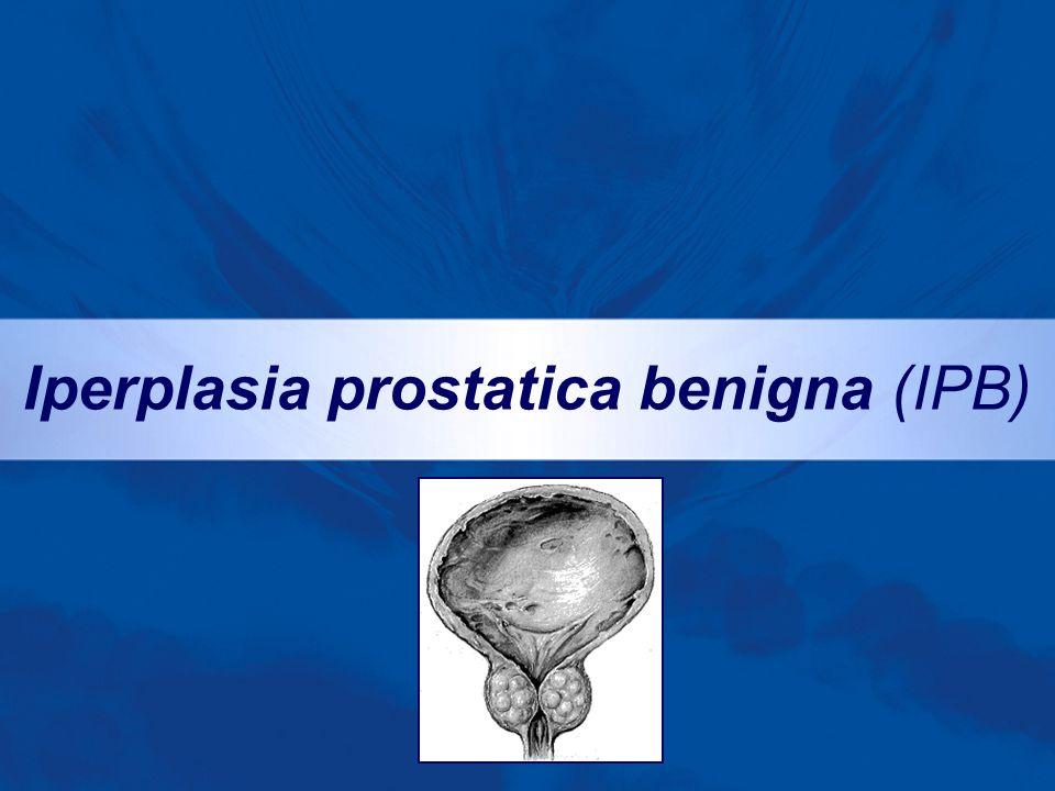 Iperplasia prostatica benigna (IPB)
