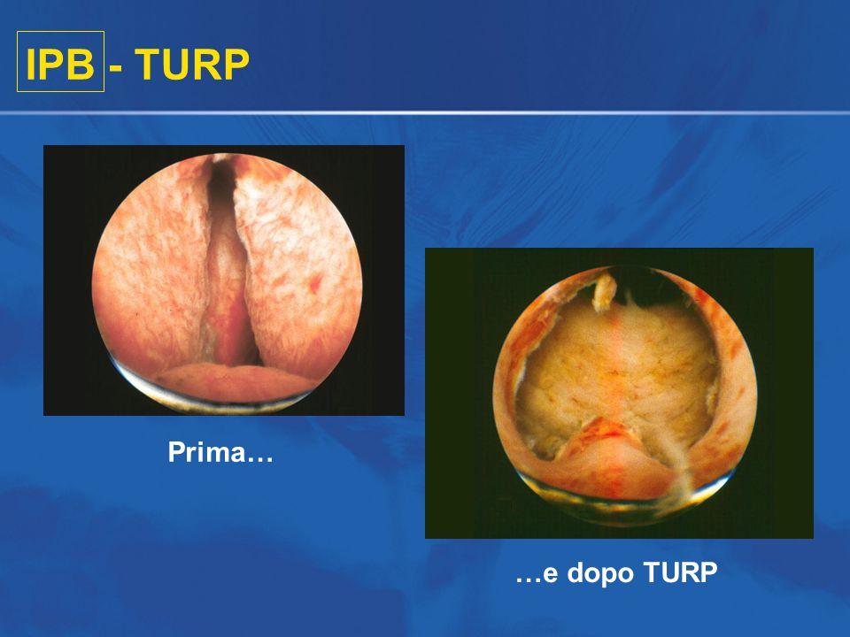 IPB - TURP Prima… …e dopo TURP