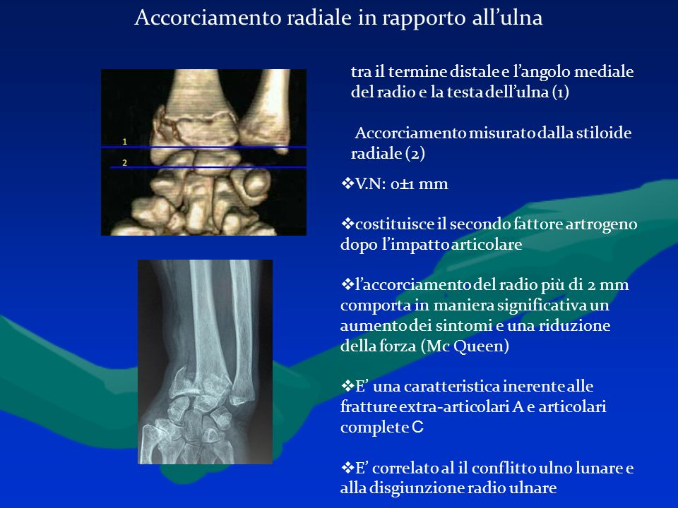 Accorciamento radiale in rapporto all'ulna