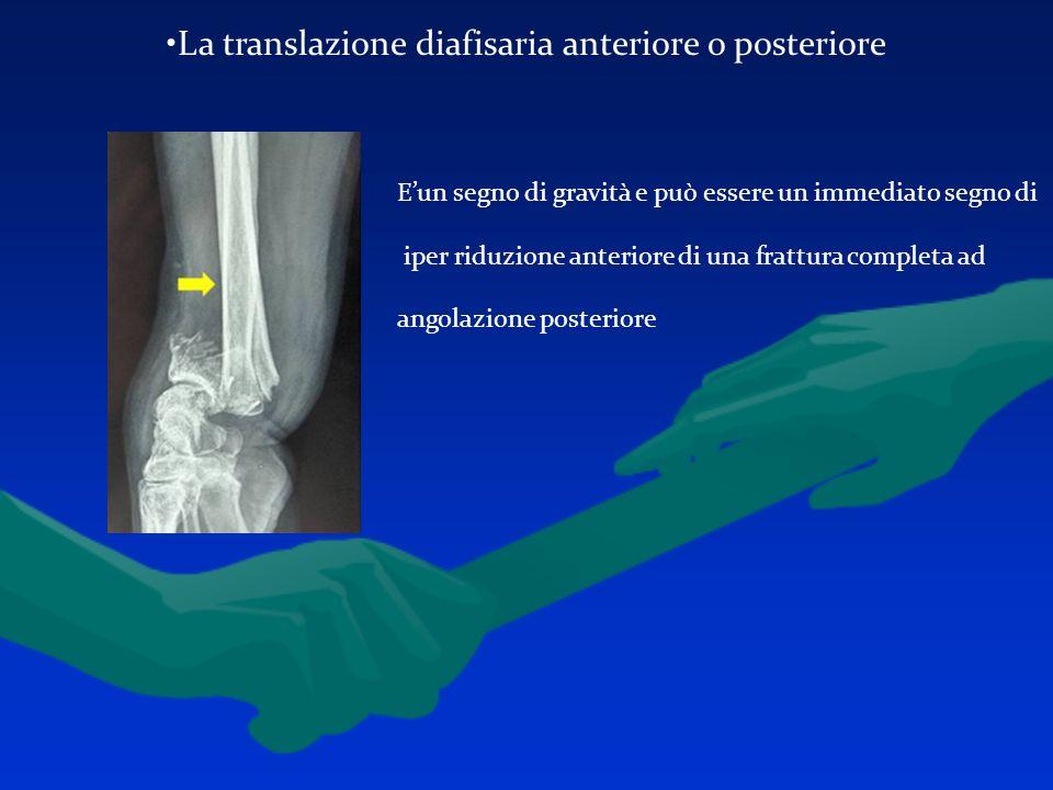 La translazione diafisaria anteriore o posteriore