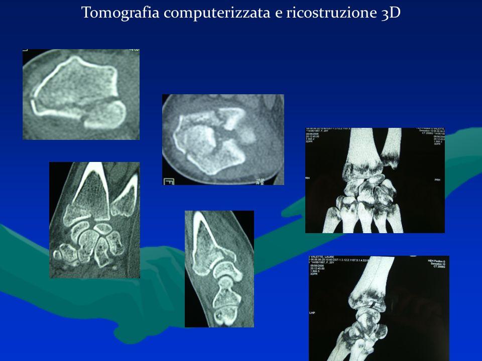 Tomografia computerizzata e ricostruzione 3D