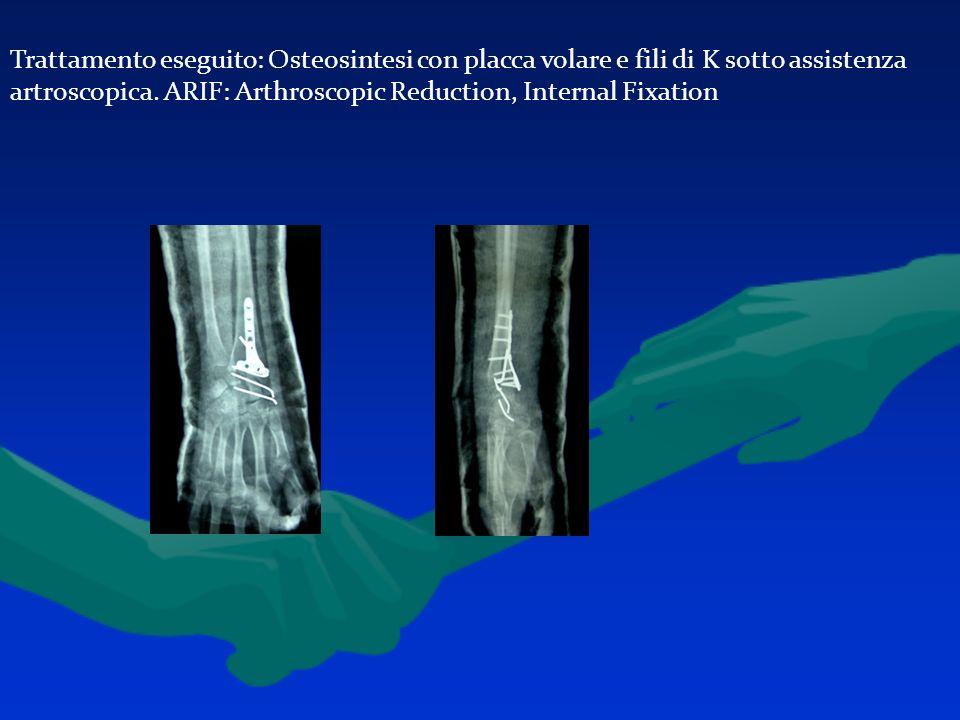 Trattamento eseguito: Osteosintesi con placca volare e fili di K sotto assistenza artroscopica.