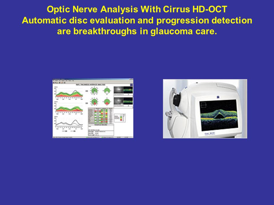 Optic Nerve Analysis With Cirrus HD-OCT Automatic disc evaluation and progression detection are breakthroughs in glaucoma care.