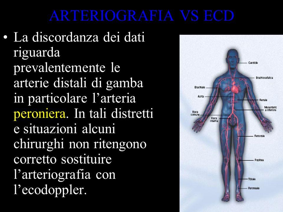 ARTERIOGRAFIA VS ECD