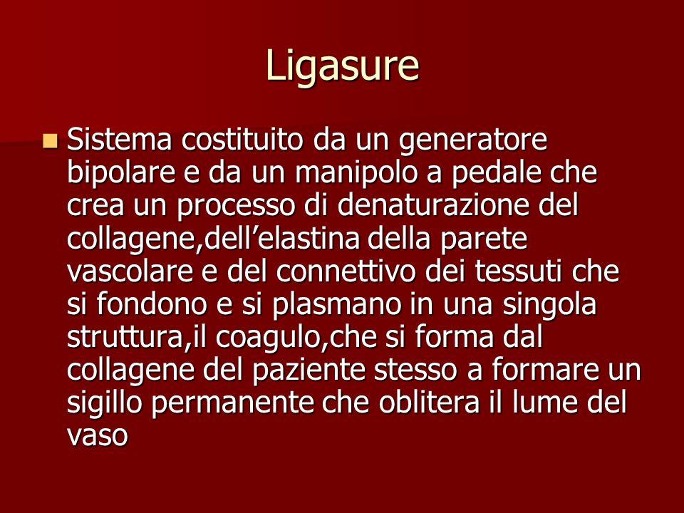 Ligasure
