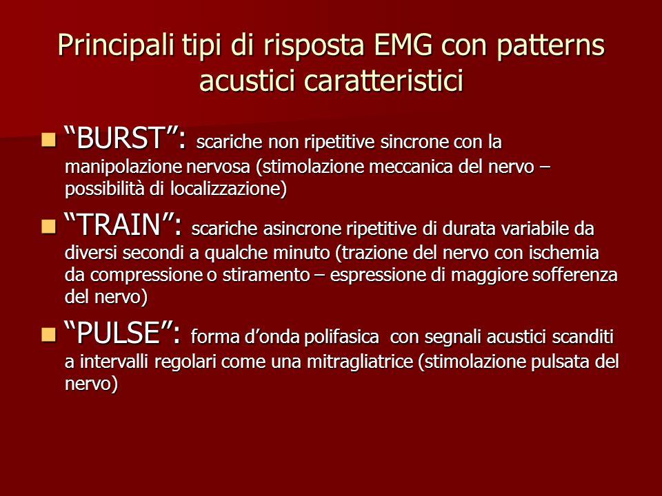 Principali tipi di risposta EMG con patterns acustici caratteristici