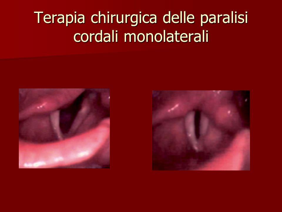 Terapia chirurgica delle paralisi cordali monolaterali