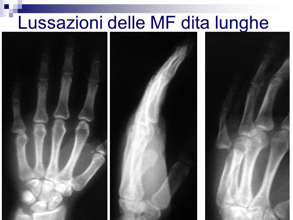 Lussazioni delle MF dita lunghe