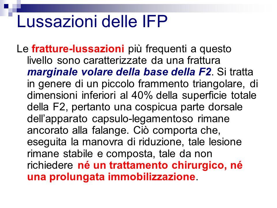Lussazioni delle IFP