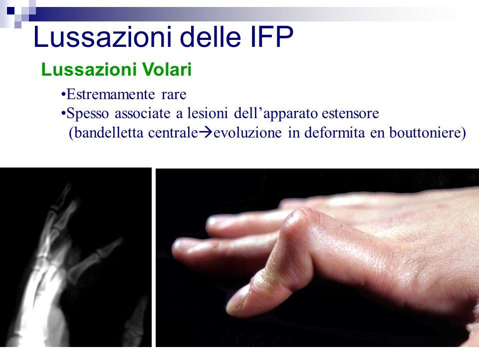 Lussazioni delle IFP Lussazioni Volari Estremamente rare
