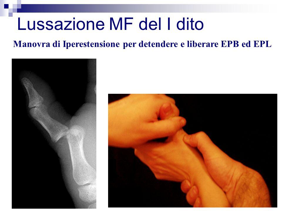 Lussazione MF del I dito
