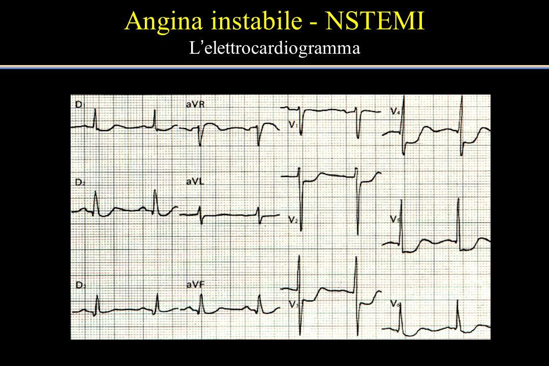 Angina instabile - NSTEMI L'elettrocardiogramma
