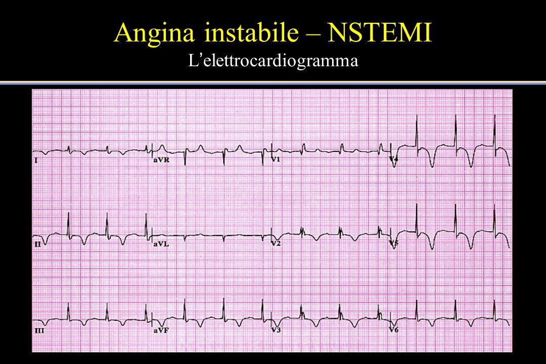 Angina instabile – NSTEMI L'elettrocardiogramma