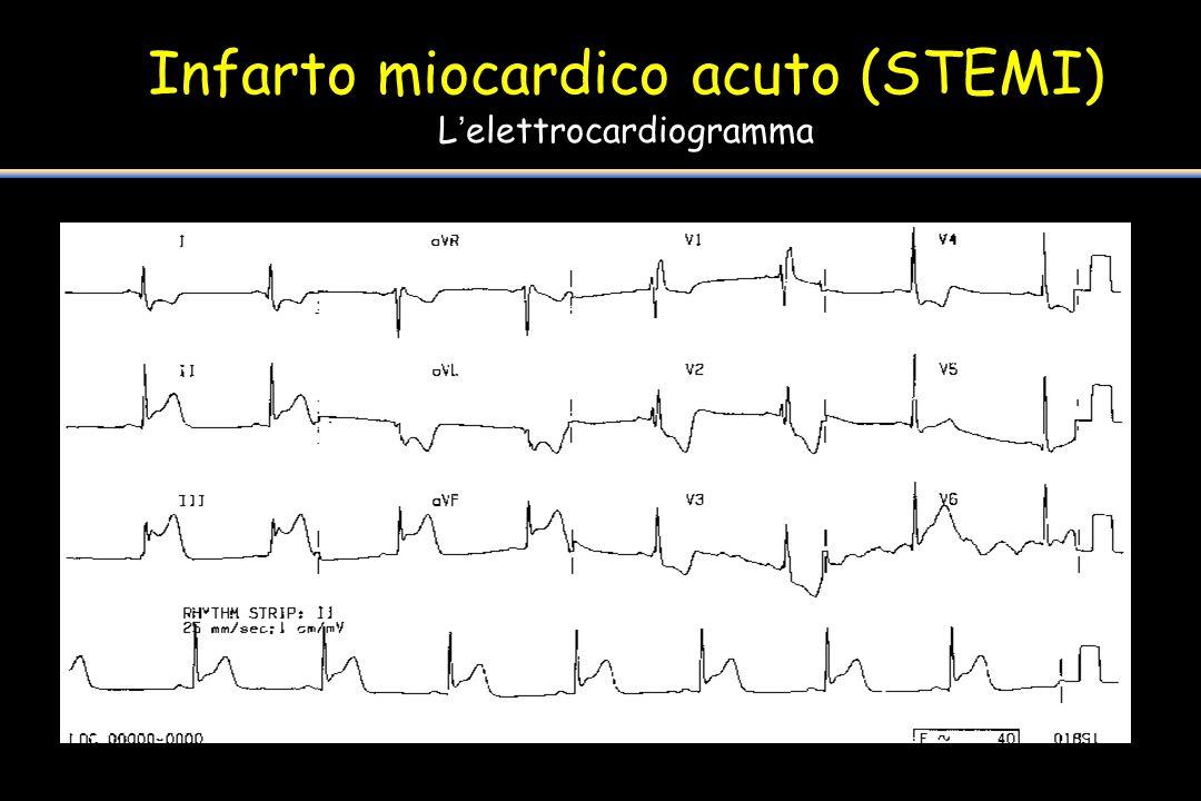Infarto miocardico acuto (STEMI) L'elettrocardiogramma