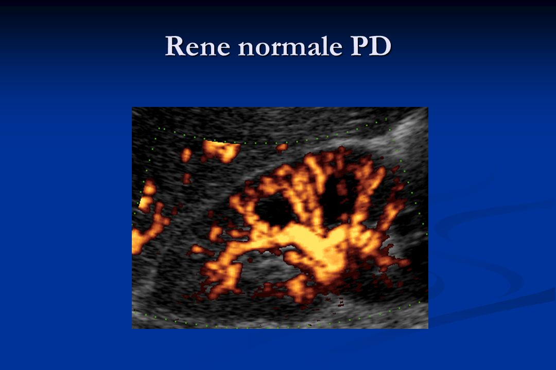 Rene normale PD