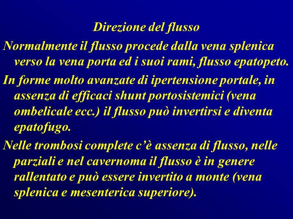 Direzione del flusso Normalmente il flusso procede dalla vena splenica verso la vena porta ed i suoi rami, flusso epatopeto.