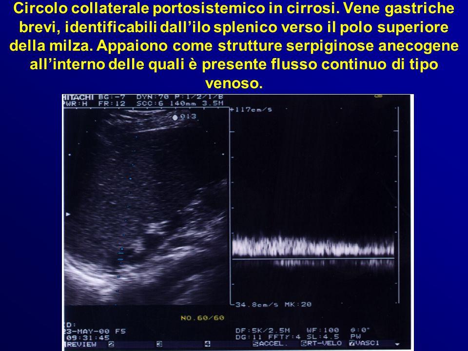 Circolo collaterale portosistemico in cirrosi