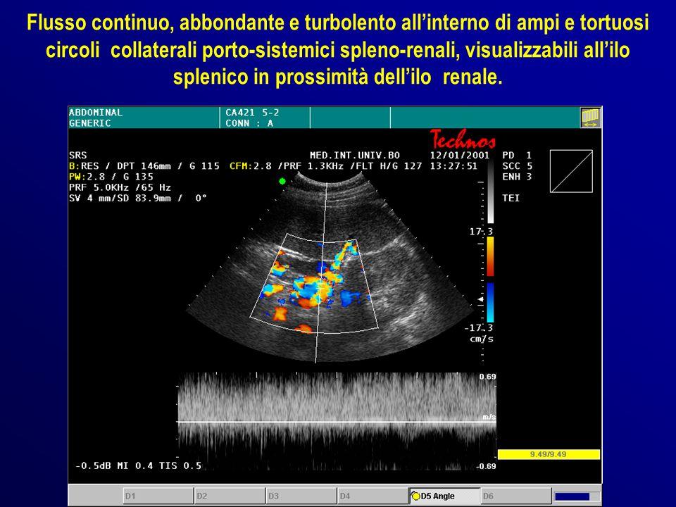 Flusso continuo, abbondante e turbolento all'interno di ampi e tortuosi circoli collaterali porto-sistemici spleno-renali, visualizzabili all'ilo splenico in prossimità dell'ilo renale.