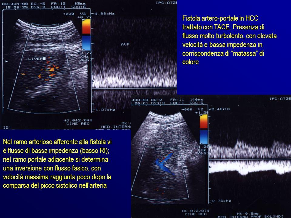 Fistola artero-portale in HCC trattato con TACE