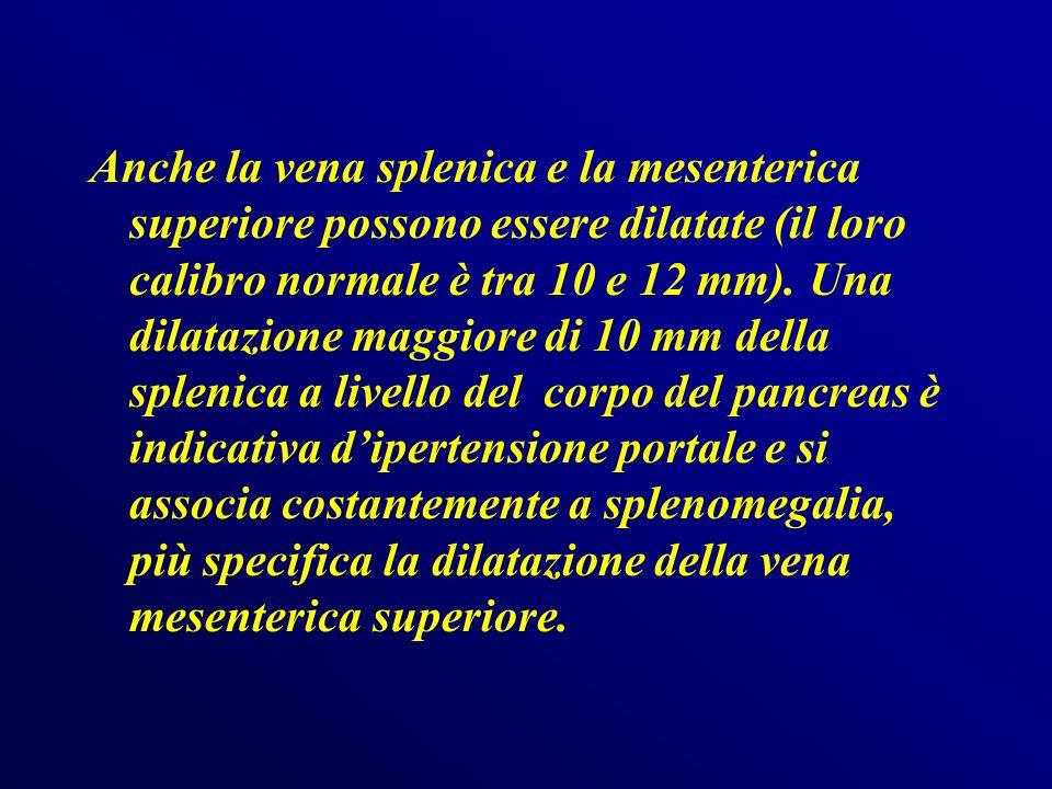 Anche la vena splenica e la mesenterica superiore possono essere dilatate (il loro calibro normale è tra 10 e 12 mm).