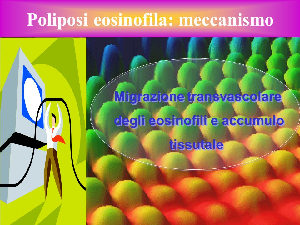 Poliposi eosinofila: meccanismo
