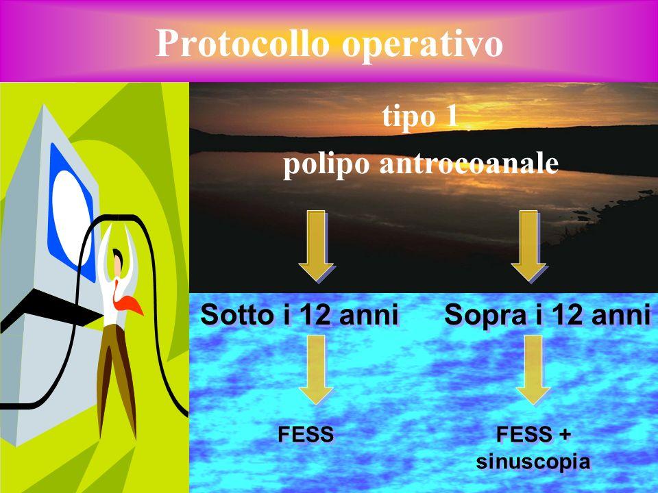 Protocollo operativo tipo 1 polipo antrocoanale Sotto i 12 anni