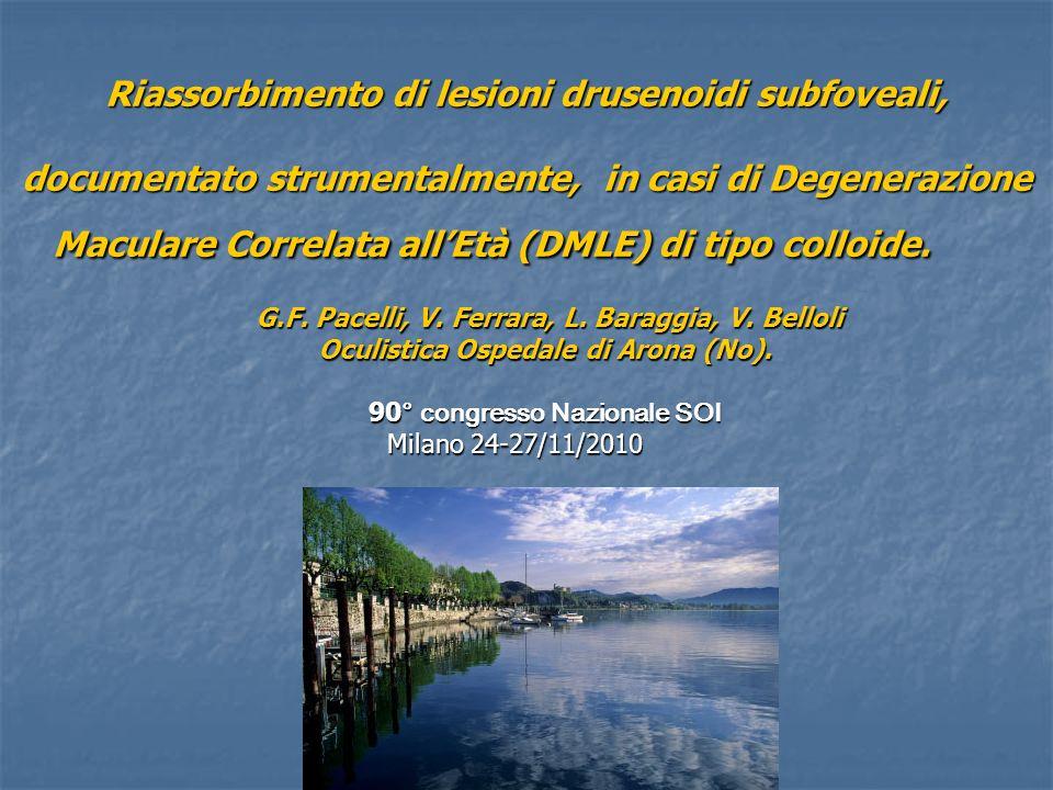 Riassorbimento di lesioni drusenoidi subfoveali, documentato strumentalmente, in casi di Degenerazione Maculare Correlata all'Età (DMLE) di tipo colloide.