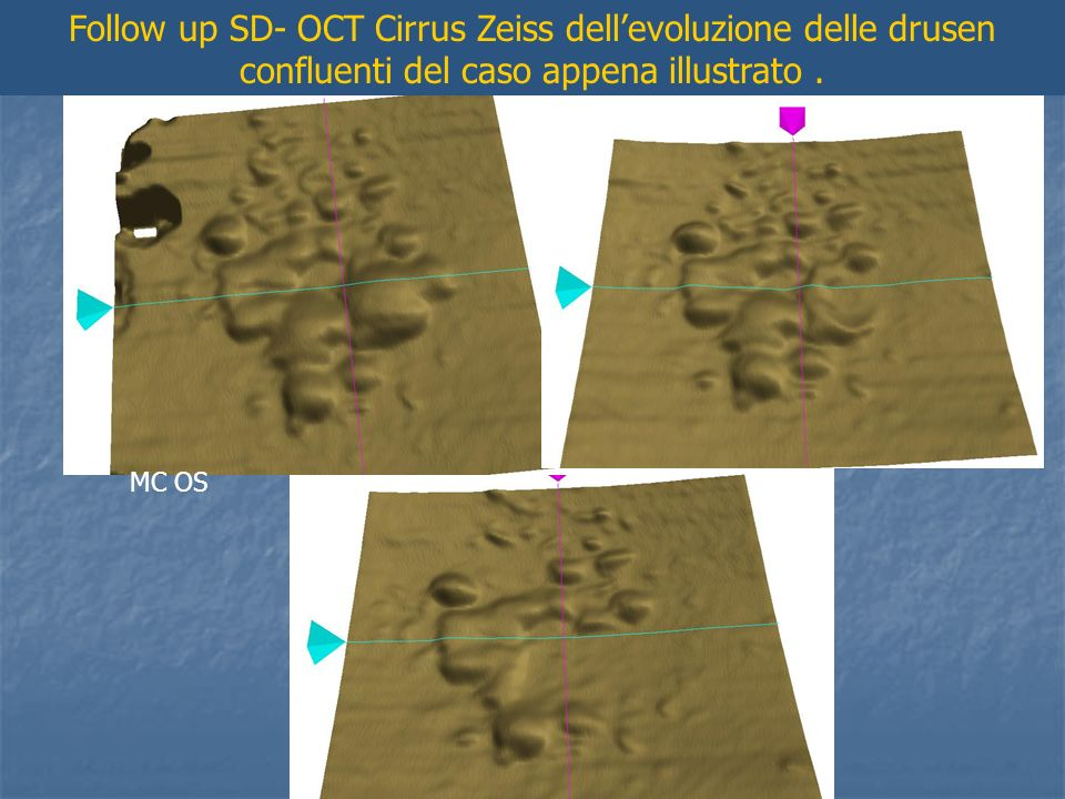 Follow up SD- OCT Cirrus Zeiss dell'evoluzione delle drusen confluenti del caso appena illustrato .