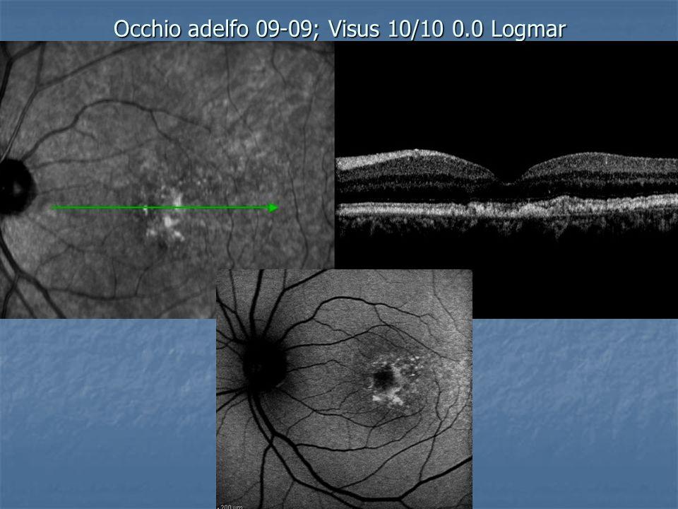 Occhio adelfo 09-09; Visus 10/10 0.0 Logmar