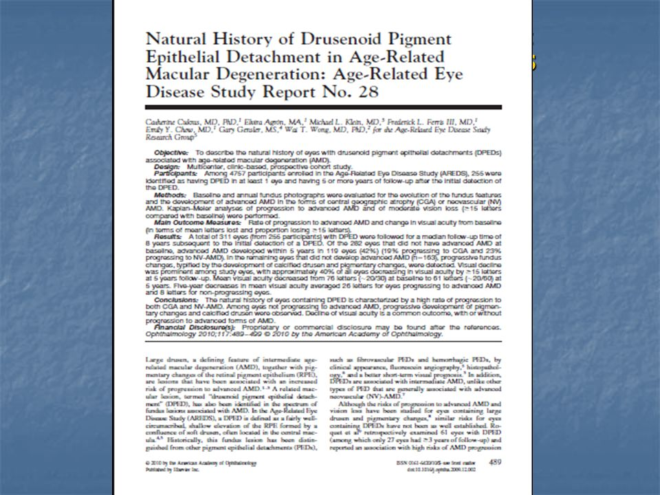 Natural history of drusenoid pigment epithelial detachment in AMD: AREDS Report No. 28. Cukras C et all. Ophthalmology 2010 Mar;117(3):489-99.