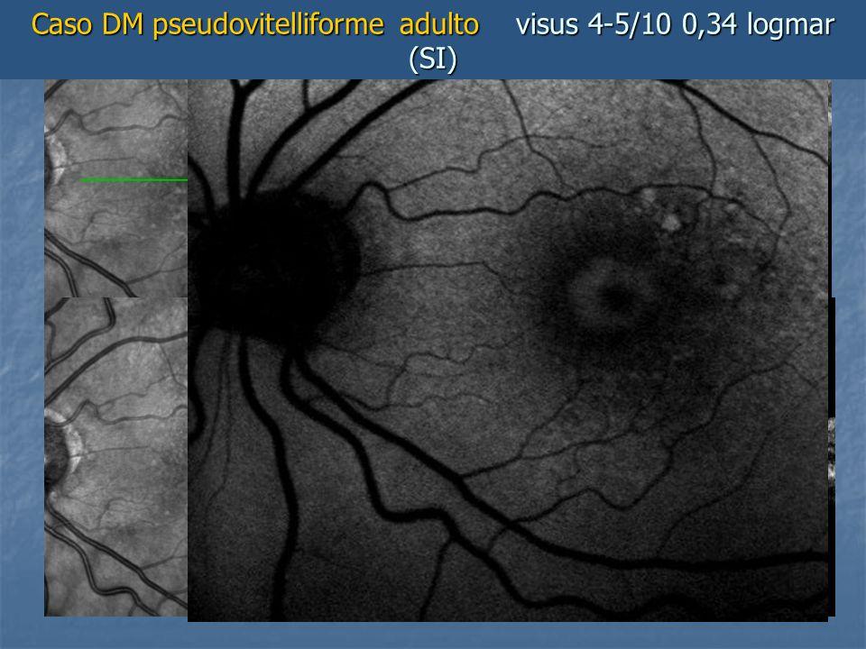 Caso DM pseudovitelliforme adulto visus 4-5/10 0,34 logmar (SI)