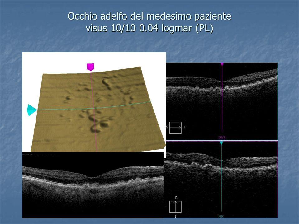Occhio adelfo del medesimo paziente visus 10/10 0.04 logmar (PL)