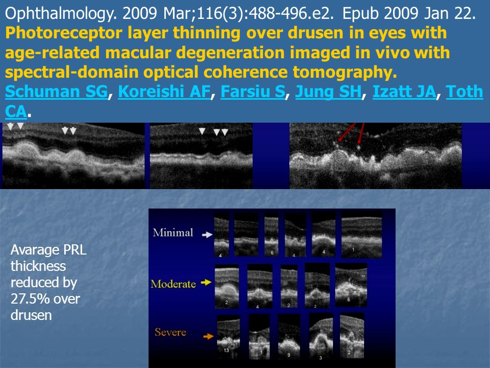 Ophthalmology. 2009 Mar;116(3):488-496.e2. Epub 2009 Jan 22.