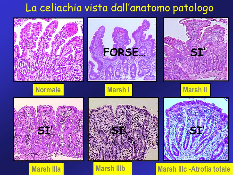 La celiachia vista dall'anatomo patologo
