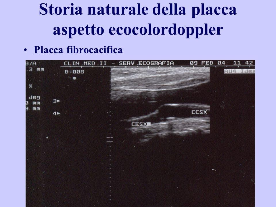 Storia naturale della placca aspetto ecocolordoppler