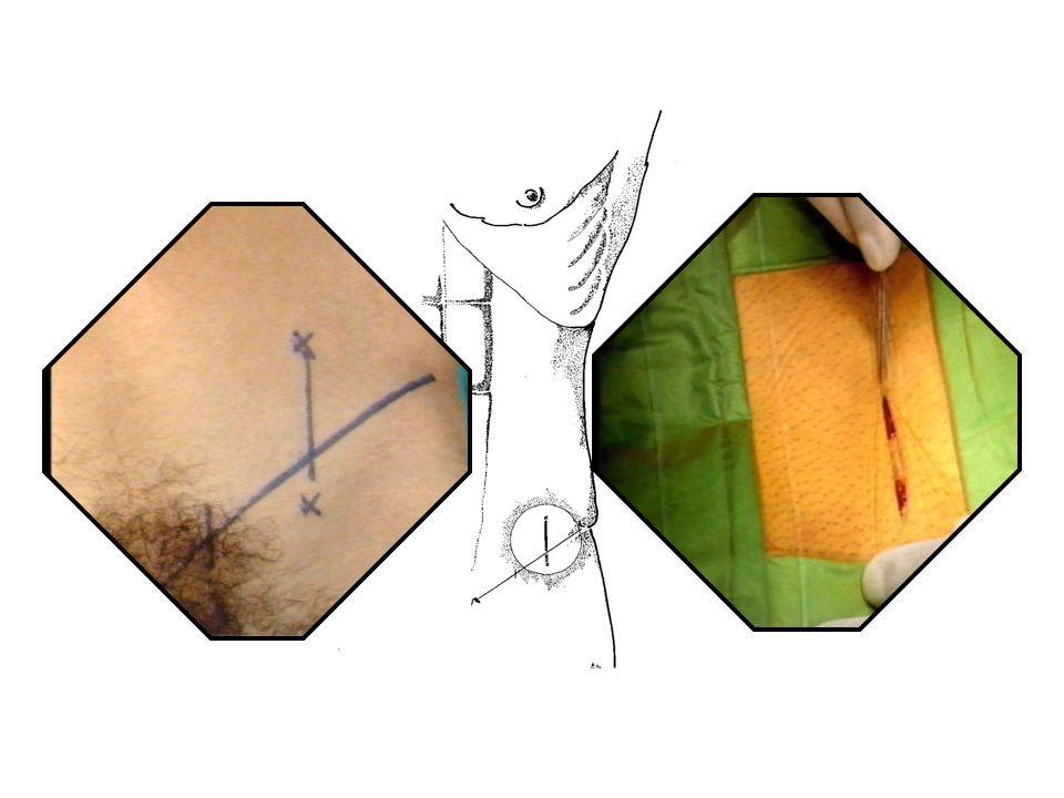 Fig. 3: Sede di incisione della tecnica di Ivanissevich.