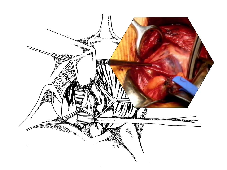 Fig. 6: Apertura del cremastere ed identificazione della vena spermatica interna dilatata.