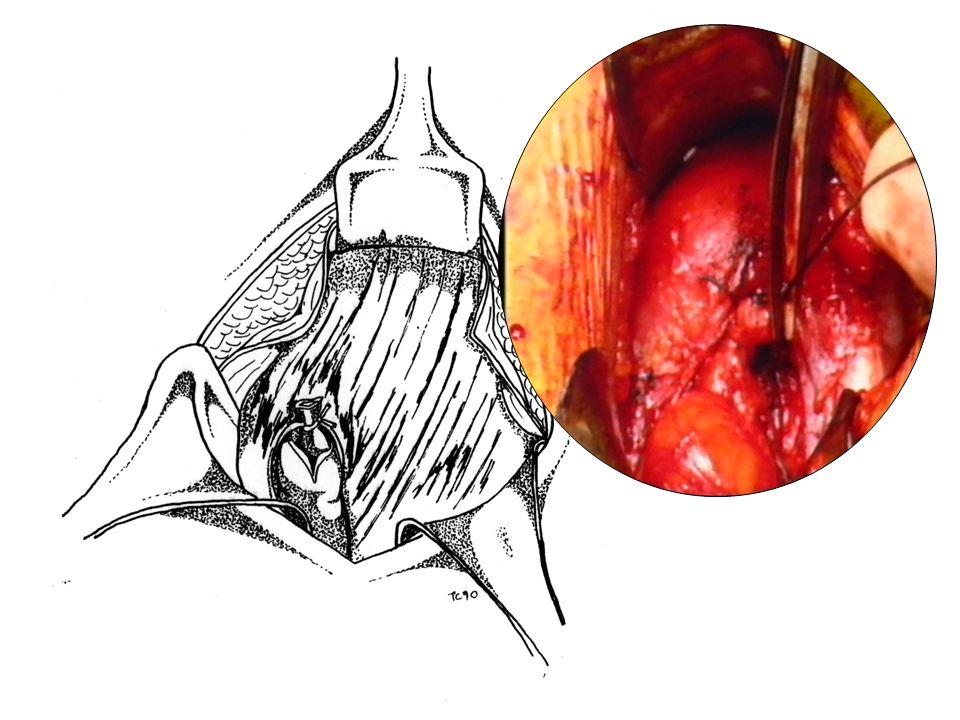 Fig. 12: Immagine a termine della procedura.