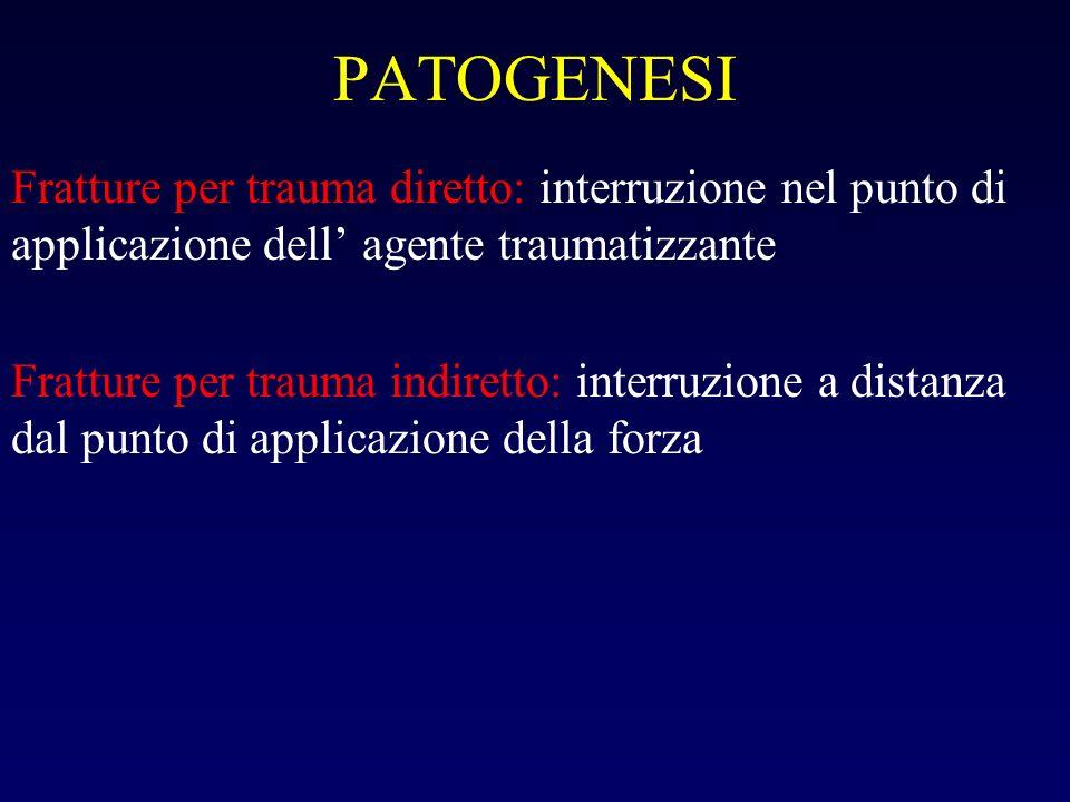 PATOGENESI Fratture per trauma diretto: interruzione nel punto di applicazione dell' agente traumatizzante.