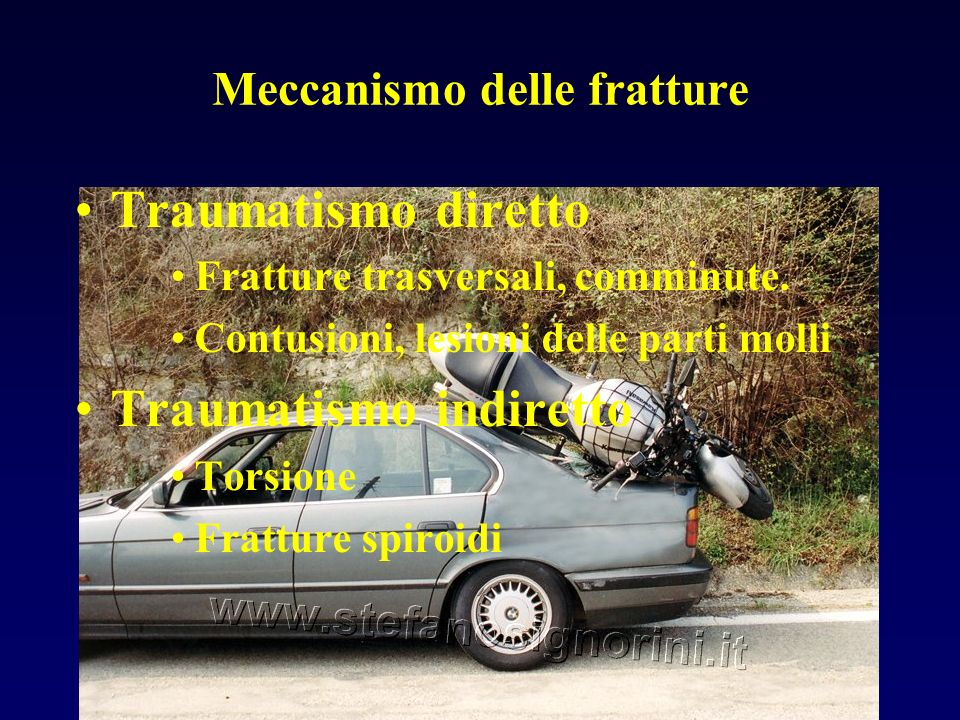 Meccanismo delle fratture