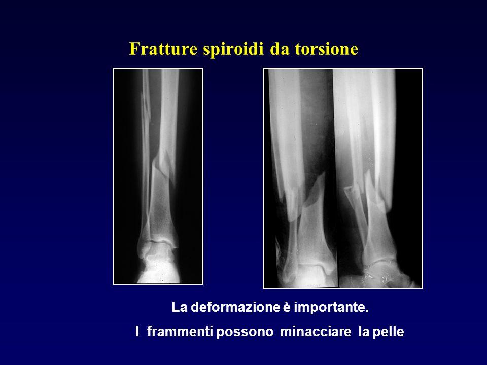 Fratture spiroidi da torsione