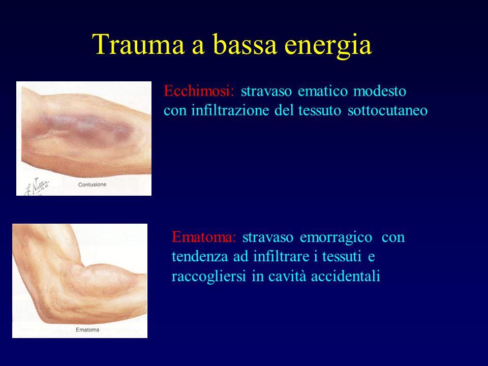 Trauma a bassa energia Ecchimosi: stravaso ematico modesto con infiltrazione del tessuto sottocutaneo.