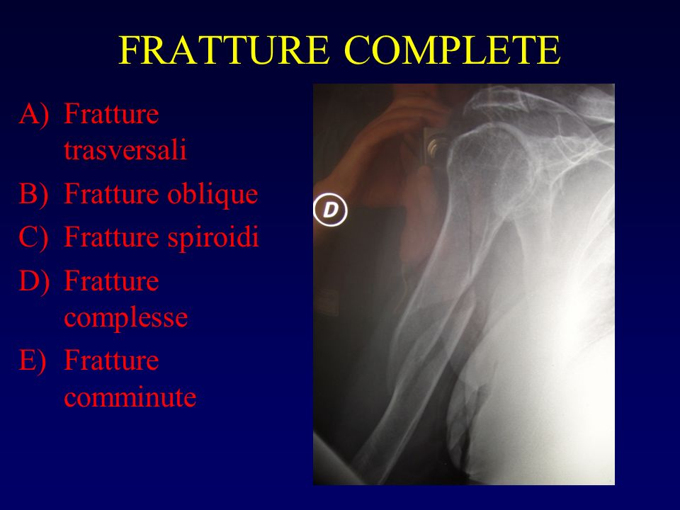 FRATTURE COMPLETE Fratture trasversali Fratture oblique